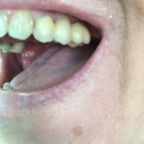 Bridge on 2 implants - after