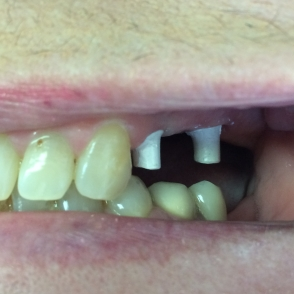Bridge on 2 implants - before