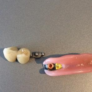 einseitige-teilprothese-im-unterkiefer