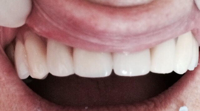upper-dentures-button-panel